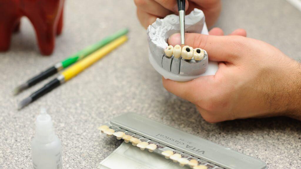 Bedančių dilema – dantų plokštelė ar implantai?